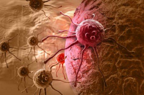 [Tiêu điểm tại CeBIT 2017] Trí tuệ nhân tạo có thể phát hiện ung thư da